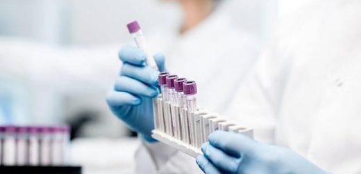 Kampf gegen Corona: Studie soll Aufschluss zur Immunitätsrate liefern
