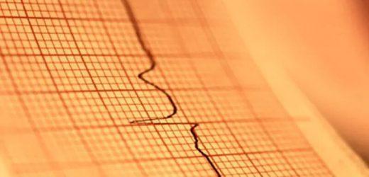 Es sieht aus wie ein klassischer Herzinfarkt, aber in COVID-19 Patienten andere Probleme im Spiel sein kann