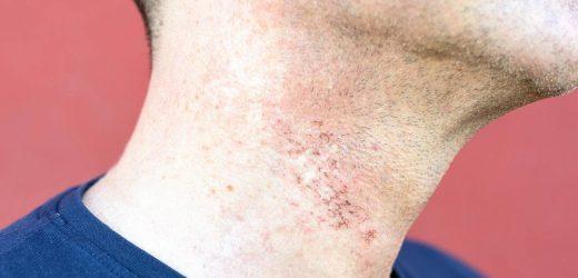 So behandeln Männer Rasurbrand richtig – und beugen ihm vor