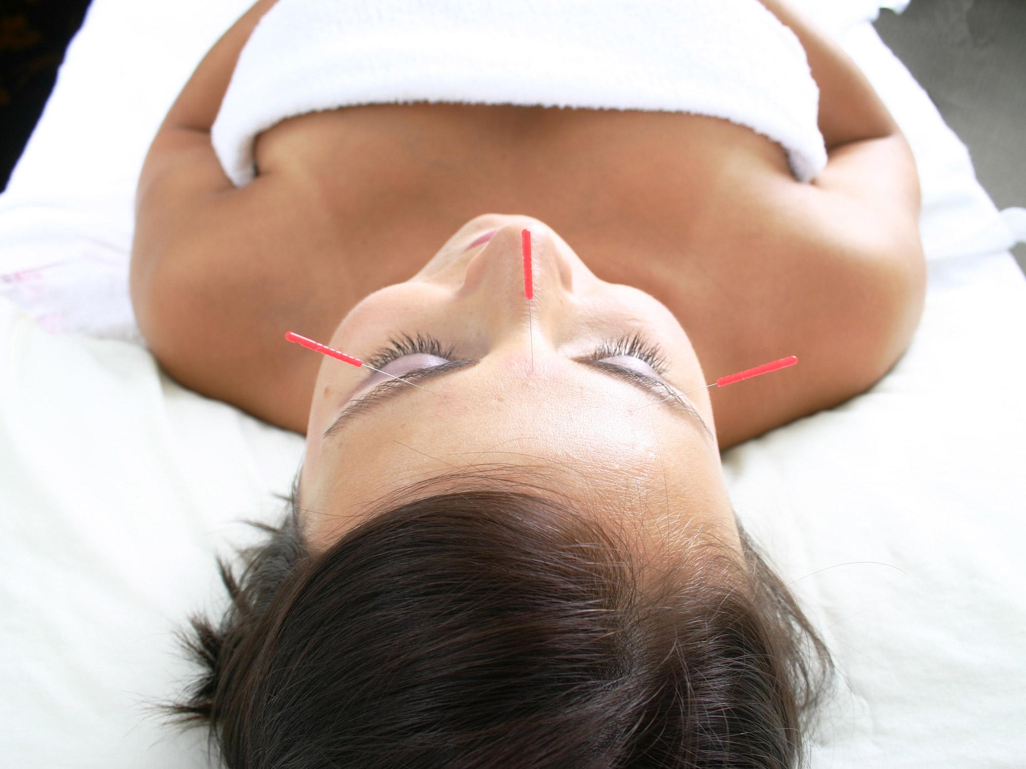 Akupunktur gegen Verdauungsstörungen?