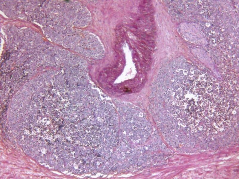 Relugolix überlegen leuprolide in fortgeschrittenem Prostata-Krebs
