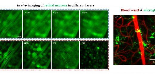 Schneide zwei-Photonen-Mikroskopie-system bricht neuen Boden in Retina-imaging