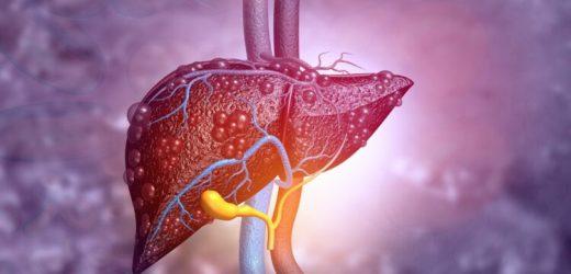 Fettleber bald mit Medikamenten behandelbar? – Naturheilkunde & Naturheilverfahren Fachportal