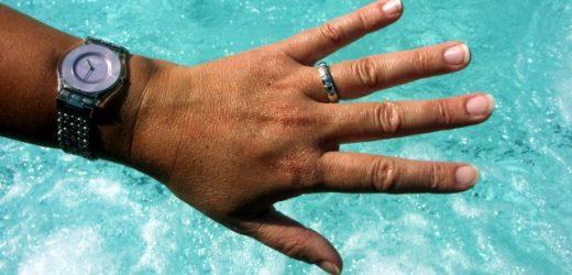 Wie schützt Melanin die Haut vor UV-Strahlung?