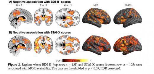 Hirnforschung wirft neues Licht auf die molekularen Mechanismen der depression