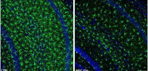 Intranasale Lieferung von MSCs bietet Hoffnung für die Behandlung der Alzheimer-Krankheit