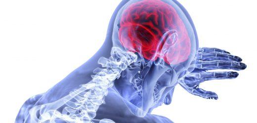 Schlaganfall, Blutungen im Gehirn nicht ab, Framingham-Studie findet
