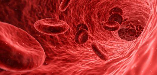 Komplikationen von COVID-19 kann davon abhängen, von-Willebrand-Faktor im Blut