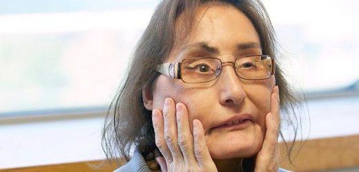 Erster Mensch in den USA mit Gesichtstransplantation: Connie Culp ist gestorben